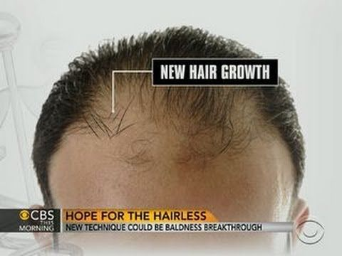 Baldness cure may be within reach