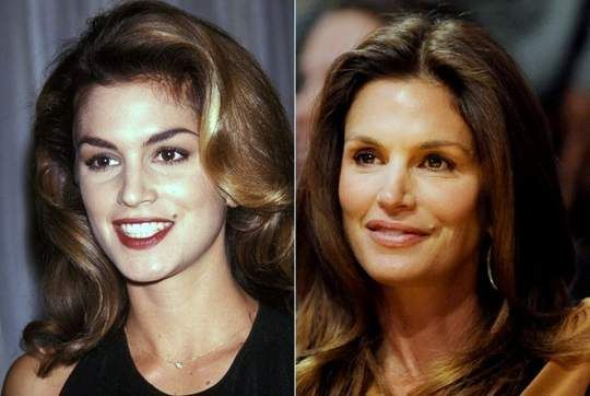 Cindy Crawford Plastic Surgery Before And After Photos –
