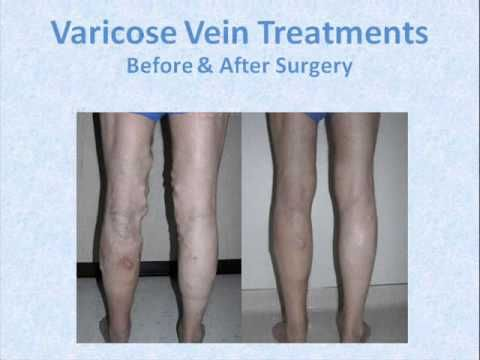 The Hogue vein institute in Minneapolis offers several treatment options for people suffering from venous diseases… http://www.hogueveininstitute.com/veintreatment.php