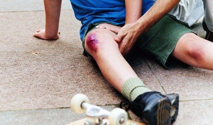 Ушиб колена – как помочь в домашних условиях. Домашнее лечение травмы колена. Народные способы и рецепты. Как лечить ушиб бадягой или подорожником
