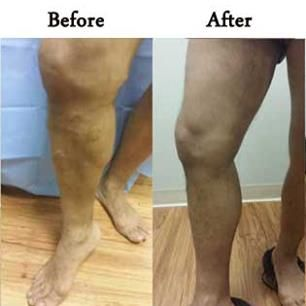 If you suffering from varicose veins or #spider_veins For the best, most advanced and reliable #varicose_veins laser treatment in #Des_Plaines drop in at Charming Skin & Vein Clinics. Book an appointment today.