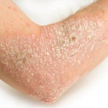 how does eczema happen