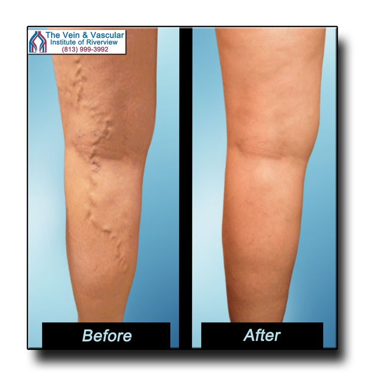 Varicose Veins Before and After Pictures From The Vein and Vascular Institute of Riverview. Call (813) 999-3992 for a Vein Consultation. Our Riverview vein specialists are Board Certified Vascular Surgeons.  https://www.veinandvascularinstituteofriverview.com/riverview-varicose-vein-removal-pictures/