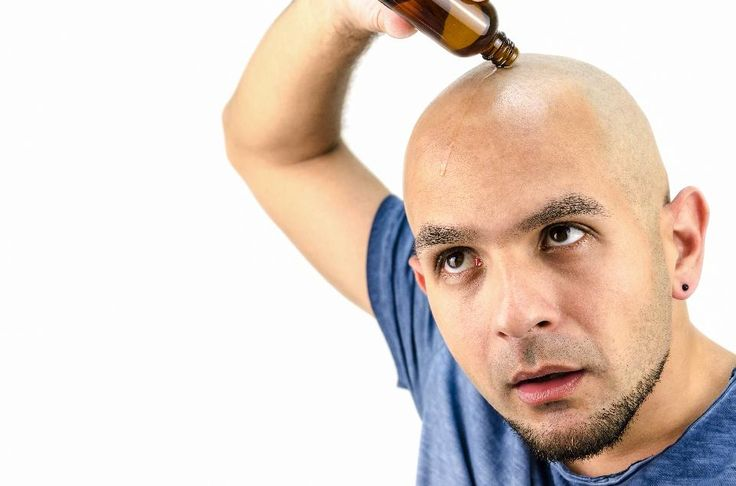 60 Best Research News Images On Pinterest Scientists The Custom Male Pattern Baldness Cure Discovered