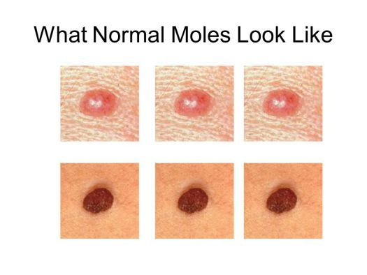 Is your mole malignant? Find out the red signals you should never