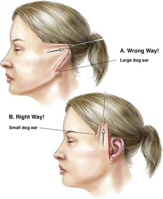 Short Scar Facelift, S lift, and MACS (Minimal Access Cranial Suspension)…