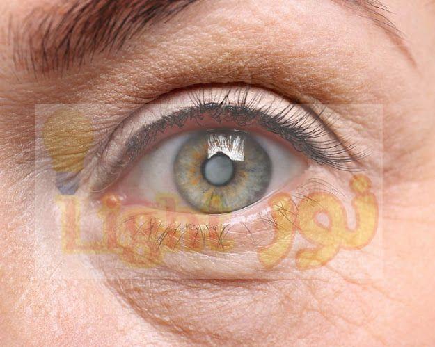 اعتام عدسة العين العوامل التى تزيد من خطر الاصابه به واهم الاغذيه المفيده لصحه العين