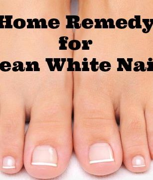 Home Remedy for Clean White Nails ~ Says: Awesome Home Remedy that REALLY WORKS! 2.5 Tbsp Baking Soda + 1 Tbsp Peroxide. Leave paste on & under nails for 3 mins once a week.