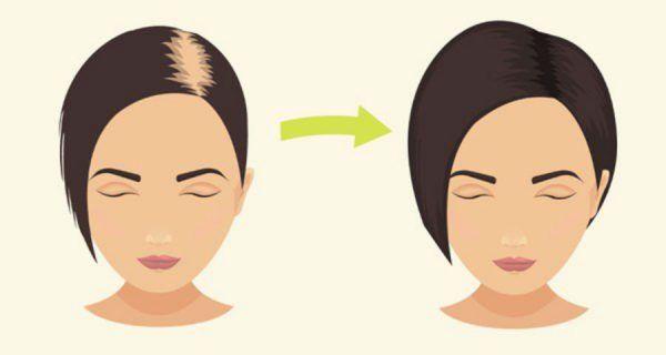 Le bicarbonate de soude comme shampoing pour empêcher la perte de cheveux, stimuler la croissance des cheveux, et revitaliser les cheveux! (Avec recette!)