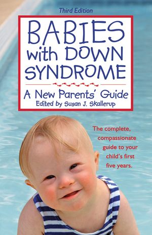 Babies with Down Syndrome - A New Parent's Guide