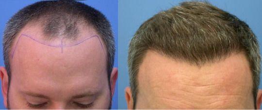 Hair Transplant in Melbourne