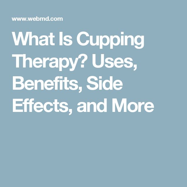 What Is Cupping Therapy? Uses, Benefits, Side Effects, and More