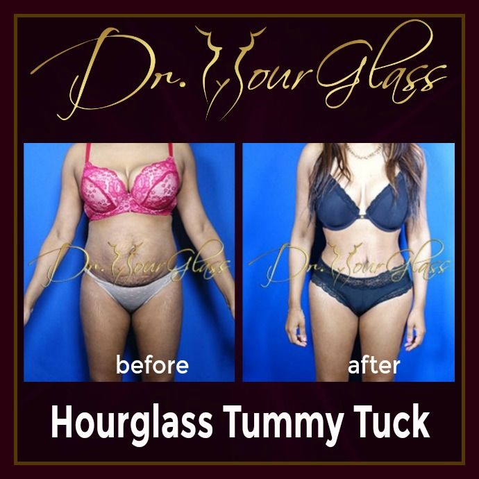 Even if you don't have a curvy figure you will still achieve it with the help of the Hourglass Tummy Tuck procedure. This technique is famous today because it will not only make your tummy look fit and firm, it can also help to recreate the sexy figure that you long for.