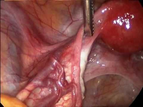 Endometriosis surgery - YouTube ***now I have a far better understanding of my last gazillion (ok, 4-5) endo surgeries!! I'm loving this!