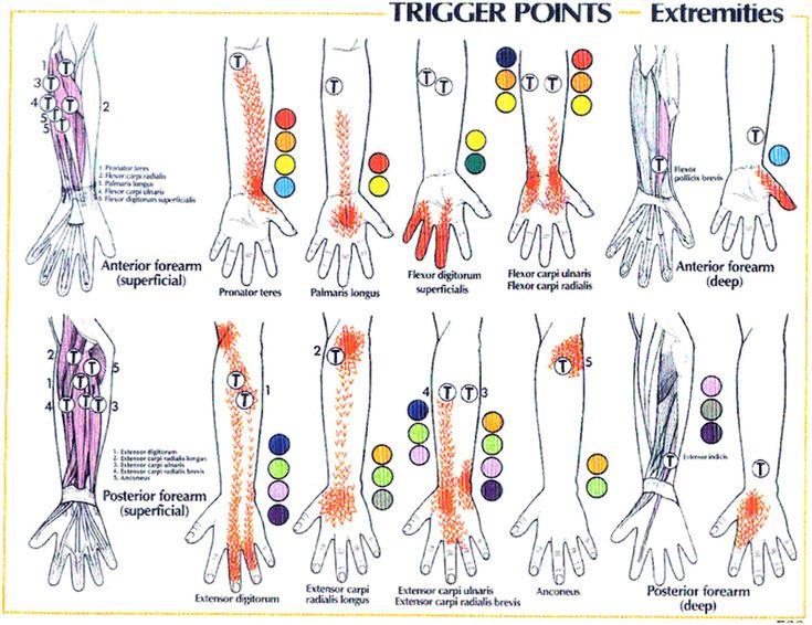 18 best trigger point images on Pinterest Trigger points