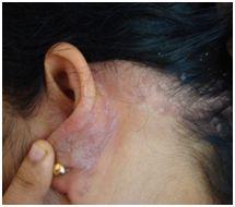 Integrative Treatment for #LichenPlanus Patients   #ayurveda #integrativemedicine