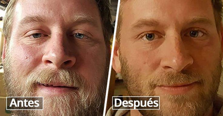 15 Fotografías de los cambios que ocurrieron en las personas luego de dejar de beber alcohol. Todas se ven más saludables y felices en la foto actual.