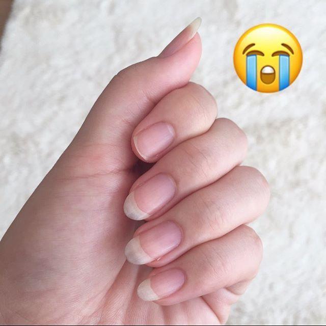 お、折れた〜。カーペットに座ろうとして手をついたらパンッッって弾け飛んだよ。一瞬の出来事でえ?みたいな😂 . いい感じに伸びてくると決まってこのパターン😅 #薄爪あるある #透けるくらい薄い爪 #お風呂上がりはフニャフニャ #UVライト拷問すぎてジェルネイルしたくない #またゼロからのスタート #ショートネイル楽しも♡ #ネイル#セルフネイル#マニキュア#100均ネイル#薄爪#ショートネイル#nailstagram #nail