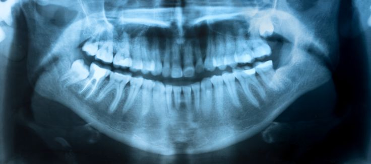 How Often Should I Undergo Dental X-Rays? #Artofmoderndentistry