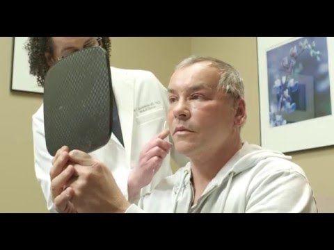 Facial sculpting botox Advanced with