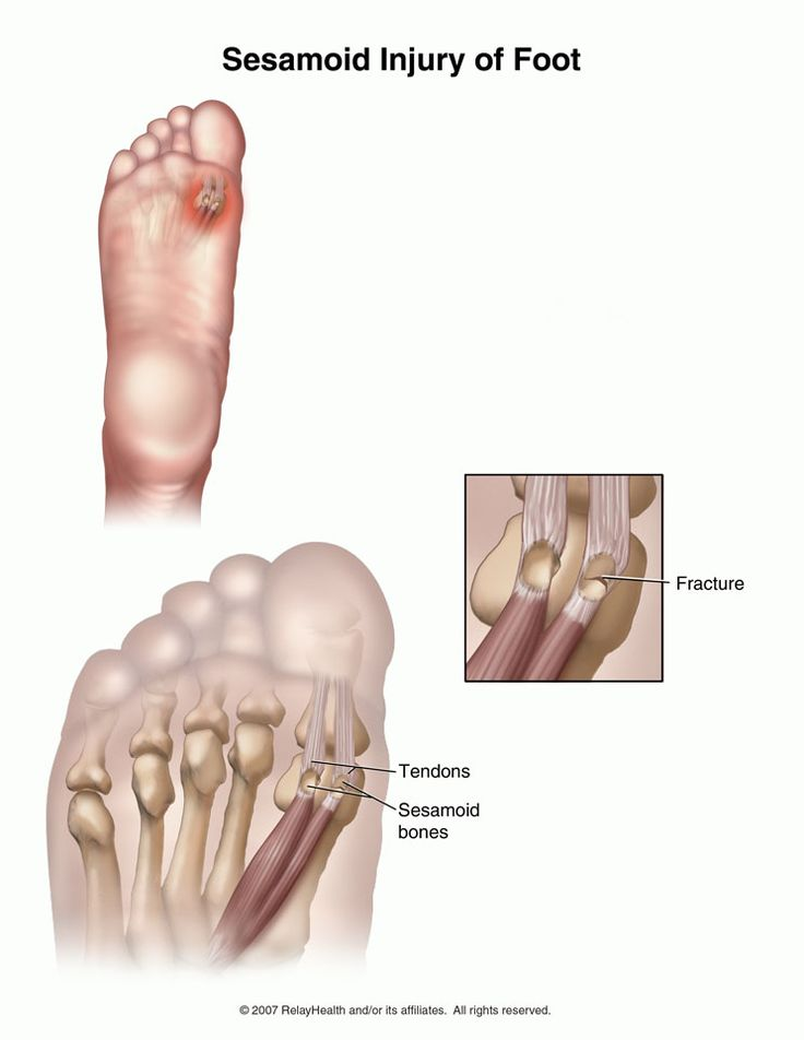 62 best images about Podiatry on Pinterest | Contact sport ...