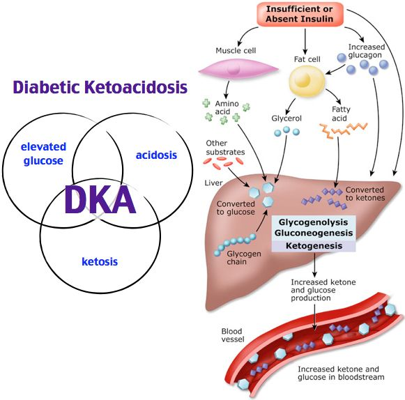 diabetic ketoacidosis Diabetic ketoacidosis (dka) is a common, serious, and preventable complication of type 1 diabetes, with a mortality of 3-5% it can also occur in patients with other.