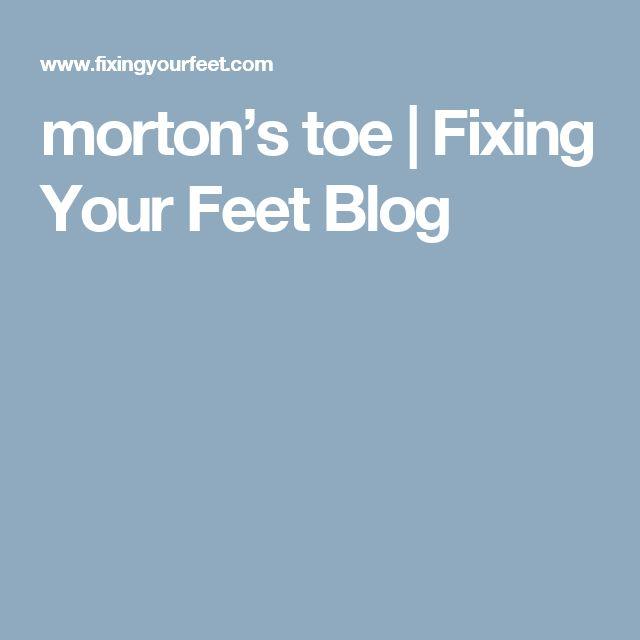 morton's toe | Fixing Your Feet Blog