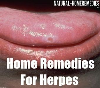 Natural Treatments for Herpes - Scoop.it