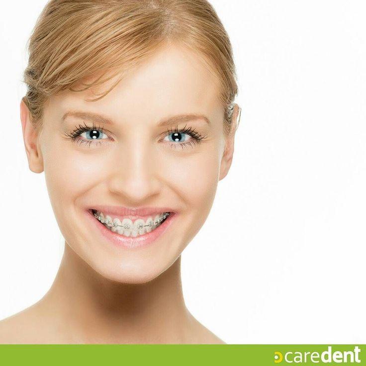 Tus dientes no están en la posición Correcta? Si este es tu caso la #Ortodoncia es el tratamiento por excelencia que se encarga de corregir cualquier tipo de mal-posición dentaria. Existen distintos tipos de ortodoncia  luego de un diagnóstico personalizado con el especialista se determinará cual es el indicado para tu caso. #Caredent