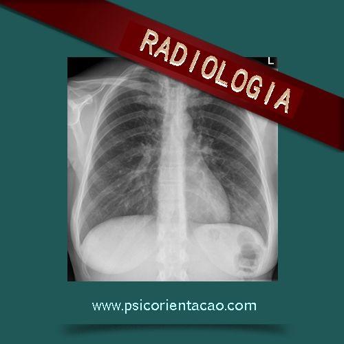 RADIOLOGIA – Curso tecnólogo, onde a finalidade do profissional é operar equipamentos de diagnóstico por imagem.        Atuação: Área médica, industrial, engenharia