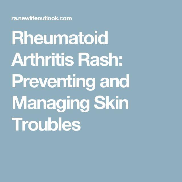 Rheumatoid Arthritis Rash: Preventing and Managing Skin Troubles