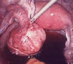 signs of ovarian cyst burst