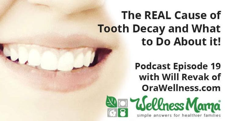 The Real Cause of Tooth Decay and What to Do About It The REAL Causes of Tooth Decay   Podcast Episode 19