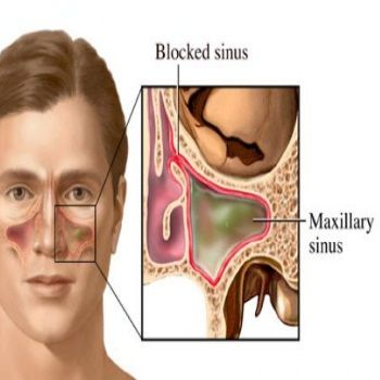 Home Remedies For Sinus Drainage - Natural Treatments & Cure For Sinus Drainage