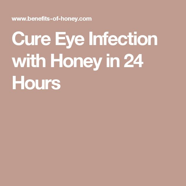 Best 25 Viral Infection Ideas On Pinterest: Best 25+ Eye Infections Ideas On Pinterest