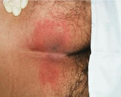 Stage I pressure ulcer in the sacral area. Characterized by a breakdown of skin integrity in the epidermis, Stage I ulcers present with a superficial, reddened area. Citation: Niezgoda, J. A., & Mendez-Eastman, S. (2006). The effective management of pressure ulcers. Advances in Skin & Wound Care: The Journal for Prevention and Healing, 19(1), 3-15. Retrieved from http://www.nursingcenter.com/lnc/JournalArticle?Article_ID=636557&Journal_ID=54015&Issue_ID=636556