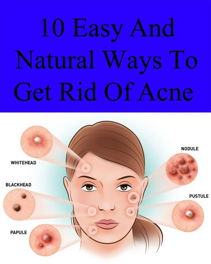 10 Easy and Natural Ways to Get Rid of Acne #GetRidOfZit