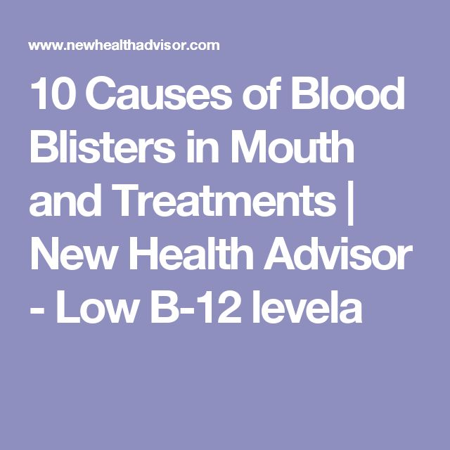10 Causes of Blood Blisters in Mouth and Treatments | New Health Advisor - Low B-12 levela