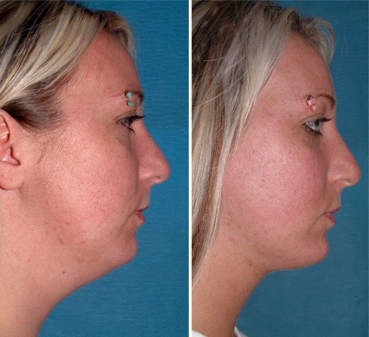 Chin liposuction... all the difference in the world!