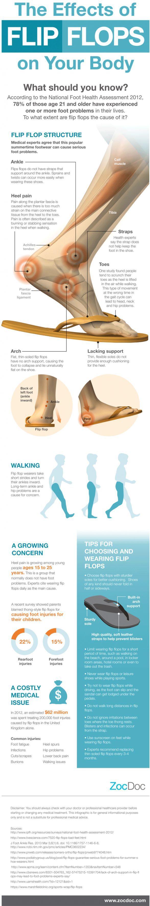 Health Effects Of Flip Flops On Your Feet via topoftheline99.com