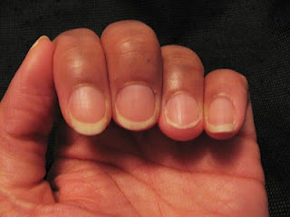 Many people experience hang nails at some point.  This blog post will tell you how they are caused and how to deal with them.  Plus two participants in the Bare Naked Nail Challenge report on their progress to date.  #hangnails, #weak nails, #dry nails, #nail treatments #cuticles   www.askcosmetics.com