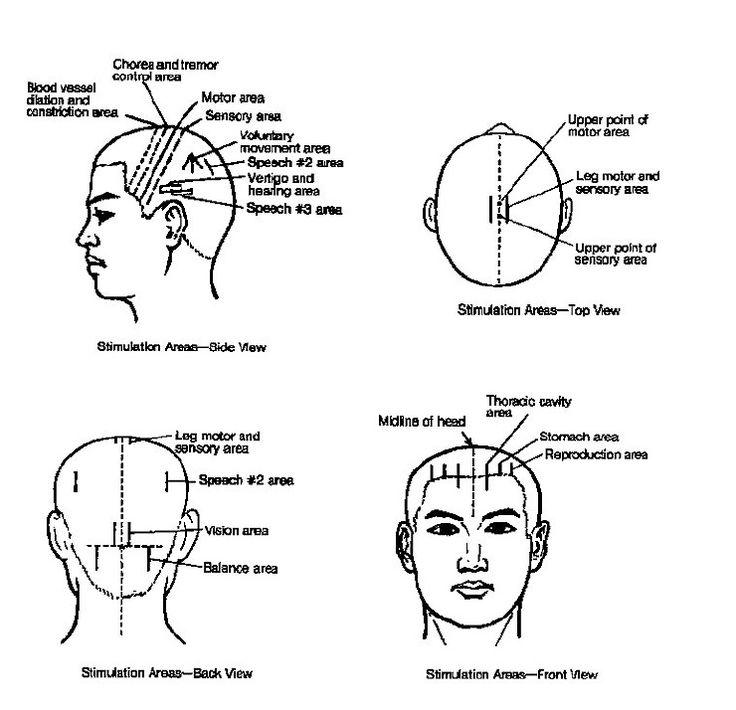 9 best TCM Scalp Acupuncture images on Pinterest