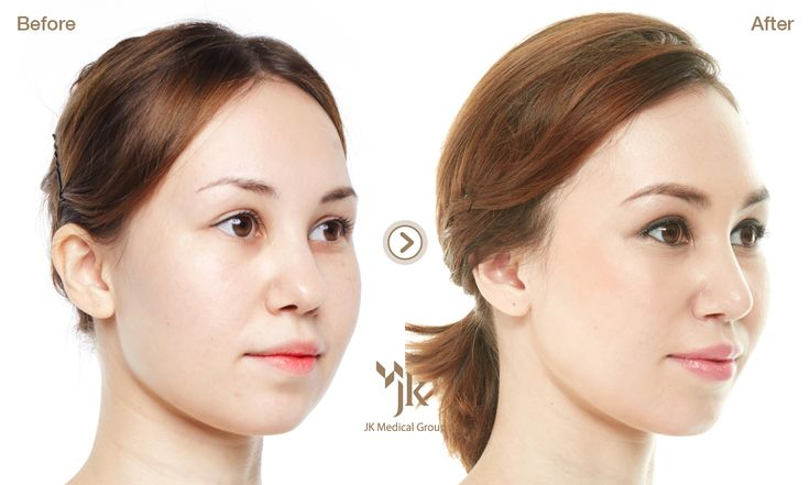 south korea plastic surgery nose Health Pictures of ...