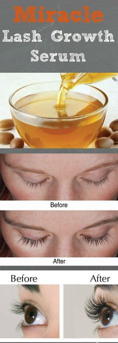 Check out this DIY miracle serum to grow eyelashes quickly .It's easy to be made !