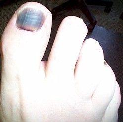 Example of a Black toenail showing advanced nail fungus symptoms