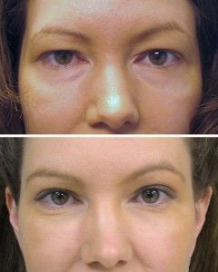 Want to get an eyebrow lift without surgery?