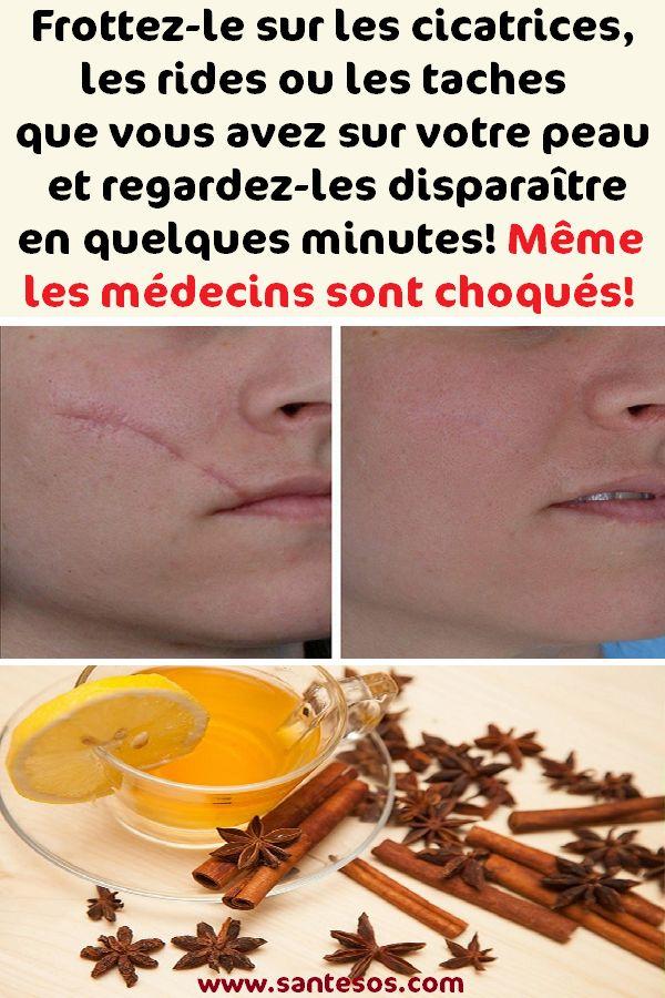 Frottez-le sur les cicatrices, les rides ou les taches que vous avez sur votre peau et regardez-les disparaître en quelques minutes! Même les médecins sont choqués!