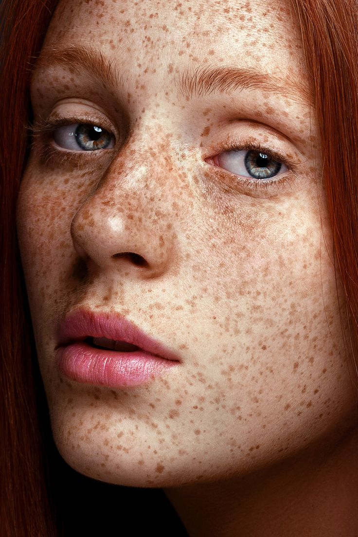 freckle-facial