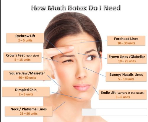 Want to know the cost of Botox injections? The cost of Botox is 10 dollars per Unit. Check out how much units requires for your treatment?