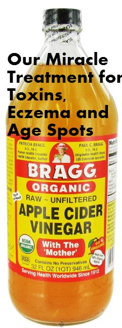 Put Apple Cider Vinegar on Your Face and SEE What Happens to Toxins, Eczema and Age Spots